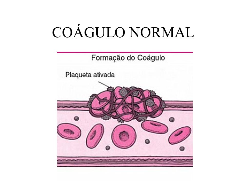COÁGULO NORMAL