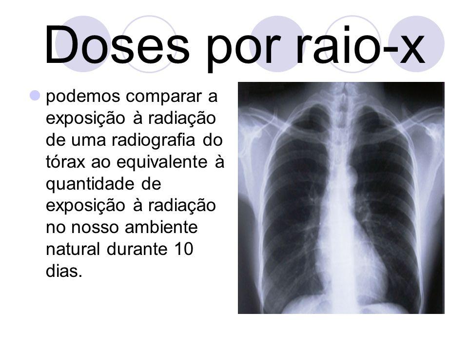 Para uma extremidade ( ex: pé) é 0.001 mSv, o equivalente a menos de um dia Para uma radiografia á espinha a dose de radiação efectiva é de aproximadamente 1.5 mSv, o equivalente a 6 meses comparado á radiação que recebemos naturalmente.