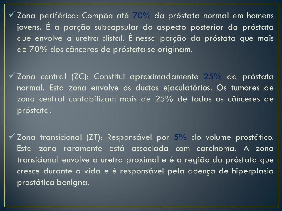 Zona periférica: Compõe até 70% da próstata normal em homens jovens. É a porção subcapsular do aspecto posterior da próstata que envolve a uretra dist