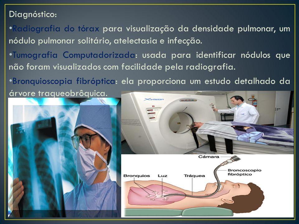 Diagnóstico: Radiografia do tórax para visualização da densidade pulmonar, um nódulo pulmonar solitário, atelectasia e infecção. Tumografia Computador