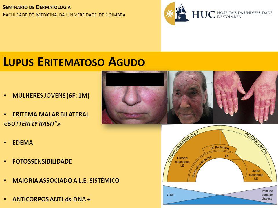 L UPUS E RITEMATOSO A GUDO S EMINÁRIO DE D ERMATOLOGIA F ACULDADE DE M EDICINA DA U NIVERSIDADE DE C OIMBRA MULHERES JOVENS (6F: 1M) ERITEMA MALAR BIL