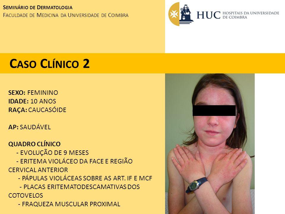 SEXO: FEMININO IDADE: 10 ANOS RAÇA: CAUCASÓIDE AP: SAUDÁVEL QUADRO CLÍNICO - EVOLUÇÃO DE 9 MESES - ERITEMA VIOLÁCEO DA FACE E REGIÃO CERVICAL ANTERIOR