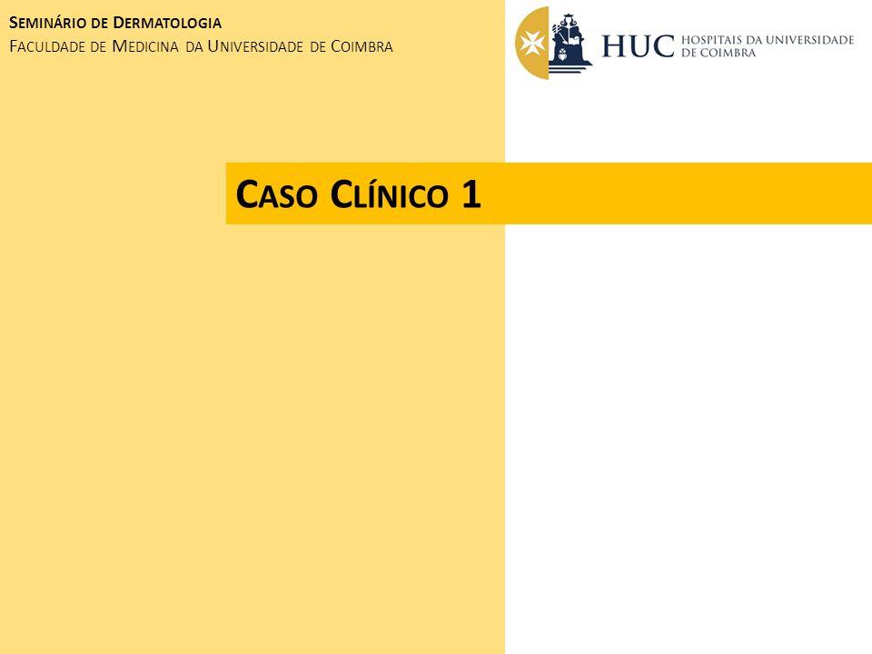 TRATAMENTO CIRURGIA - EXCISÃO RADICAL DE LESÃO PRIMÁRIA (COM MARGEM DE SEGURANÇA) - LINFADENECTOMIA RADICAL PROGNÓSTICO DEPENDENTE DO ESTADIAMENTO RESERVADO METASTIZAÇÃO À DISTÂNCIA (20%) MORTALIDADE ELEVADA M ELANOMA M ALIGNO S EMINÁRIO DE D ERMATOLOGIA F ACULDADE DE M EDICINA DA U NIVERSIDADE DE C OIMBRA