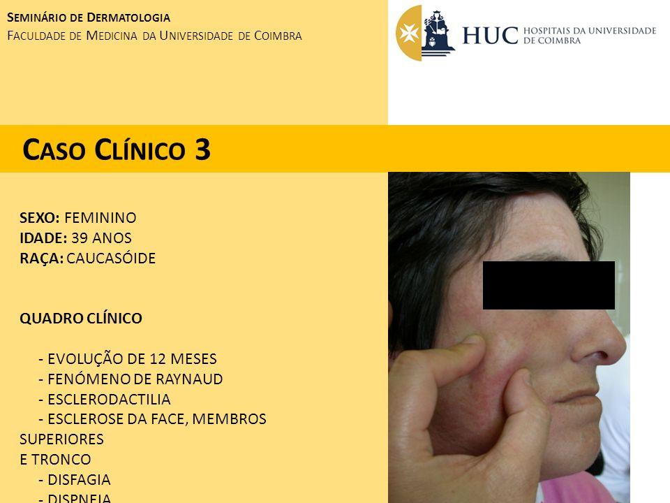 SEXO: FEMININO IDADE: 39 ANOS RAÇA: CAUCASÓIDE QUADRO CLÍNICO - EVOLUÇÃO DE 12 MESES - FENÓMENO DE RAYNAUD - ESCLERODACTILIA - ESCLEROSE DA FACE, MEMB