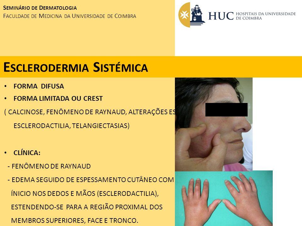 FORMA DIFUSA FORMA LIMITADA OU CREST ( CALCINOSE, FENÔMENO DE RAYNAUD, ALTERAÇÕES ESOFÁGICAS, ESCLERODACTILIA, TELANGIECTASIAS) CLÍNICA: - FENÔMENO DE