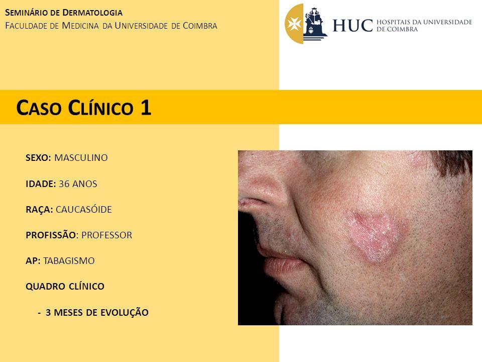 FORMA DIFUSA FORMA LIMITADA OU CREST ( CALCINOSE, FENÔMENO DE RAYNAUD, ALTERAÇÕES ESOFÁGICAS, ESCLERODACTILIA, TELANGIECTASIAS) CLÍNICA: - FENÔMENO DE RAYNAUD - EDEMA SEGUIDO DE ESPESSAMENTO CUTÂNEO COM ÍNICIO NOS DEDOS E MÃOS (ESCLERODACTILIA), ESTENDENDO-SE PARA A REGIÃO PROXIMAL DOS MEMBROS SUPERIORES, FACE E TRONCO.