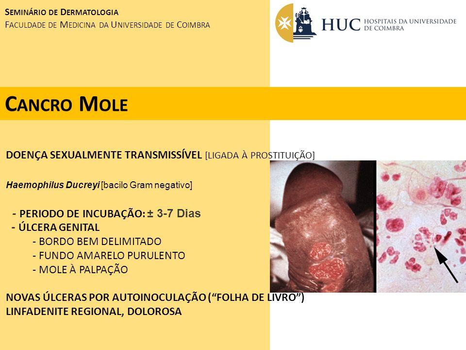 C ANCRO M OLE DOENÇA SEXUALMENTE TRANSMISSÍVEL [LIGADA À PROSTITUIÇÃO] Haemophilus Ducreyi [bacilo Gram negativo] - PERIODO DE INCUBAÇÃO: ± 3-7 Dias -