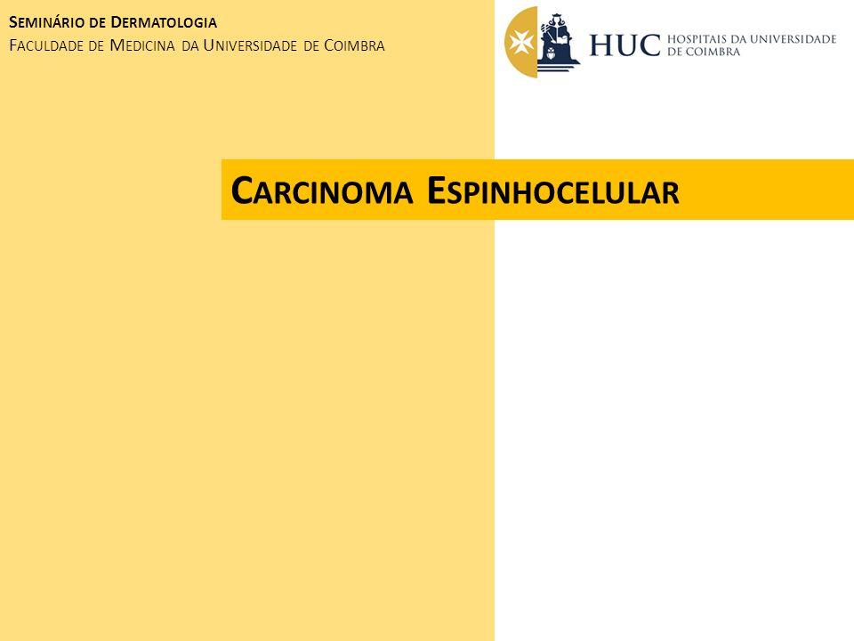 C ARCINOMA E SPINHOCELULAR S EMINÁRIO DE D ERMATOLOGIA F ACULDADE DE M EDICINA DA U NIVERSIDADE DE C OIMBRA