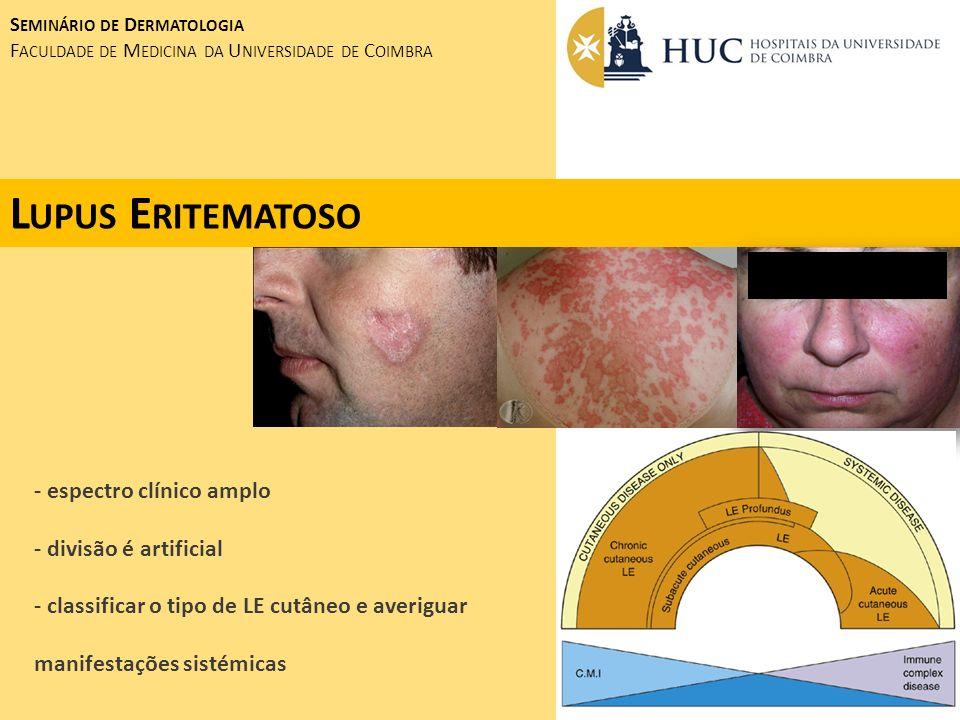 S EMINÁRIO DE D ERMATOLOGIA F ACULDADE DE M EDICINA DA U NIVERSIDADE DE C OIMBRA D ERMATOMIOSITE DISTRIBUIÇÃO ETÁRIA BIMODAL (FORMA JUVENIL E ADULTA) CLÍNICA: - ERITEMA VIOLÁCEO PERIORBITÁRIO ( ERITEMA HELIOTRÓPICO) - PODENDO ATINGIR A FACE, REGIÃO CERVICAL, DECOTE E FACE EXTENSORA DOS MEMBROS SUPERIORES EVOLUÇÃO PARA POIQUILODERMIA - MÁCULAS E PÁPULAS ERITEMATO-VIOLÁCEAS SOBRE AS ARTICULAÇÕES MCF E IF, COTOVELOS E JOELHOS ( PÁPULAS DE GOTTRON)