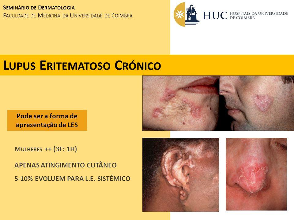 S EMINÁRIO DE D ERMATOLOGIA F ACULDADE DE M EDICINA DA U NIVERSIDADE DE C OIMBRA D ERMATOMIOSITE - T ELANGIECTACIAS PERIUNGUEAIS - D ISTROFIA DAS CUTICULAS ( SINAL DA MANICURE ) - CALCINOSE CUTIS ( FORMA JUVENIL ) - F RAQUEZA MUSCULAR DAS CINTURAS ESCAPULAR E PÉLVICA - P NEUMOPATIA INTERSTICIAL A NAS E ANTI - JO 1 F ORMA ADULTA ASSOCIADA A NEOPLASIA EM 12-15% DOS CASOS