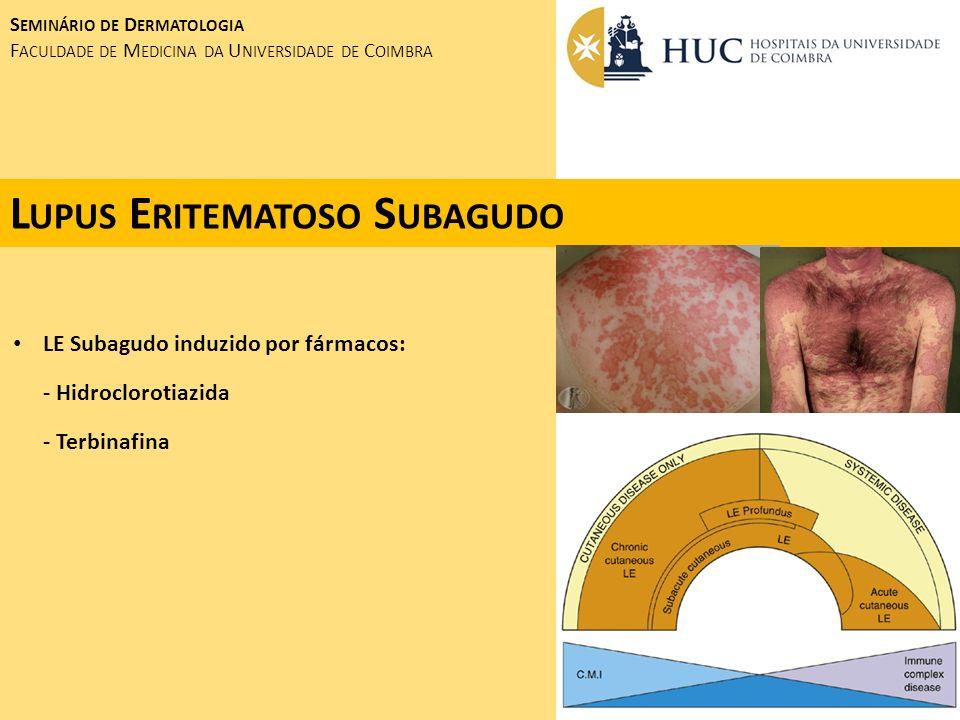 L INFOGRANULOMA V ENÉREO DOENÇA SEXUALMENTE TRANSMISSÍVEL ENDÉMICA EM REGIÕES DA ÁFRICA, ÁSIA, AMÉRICA DO SUL Chlamydia Trachomatis - PERIODO DE INCUBAÇÃO: ± 10 Dias - ÚLCERA GENITAL (CICATRIZAÇÃO RÁPIDA) 3 SEMANAS DEPOIS: - ADENOPATIAS INGUINAIS E ILÍACAS DOLOROSAS - FISTULIZAÇÃO SINTOMAS GERAIS: FEBRE, PROSTRAÇÃO, EMAGRECIMENTO S EMINÁRIO DE D ERMATOLOGIA F ACULDADE DE M EDICINA DA U NIVERSIDADE DE C OIMBRA