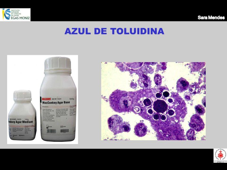 AZUL DE TOLUIDINA