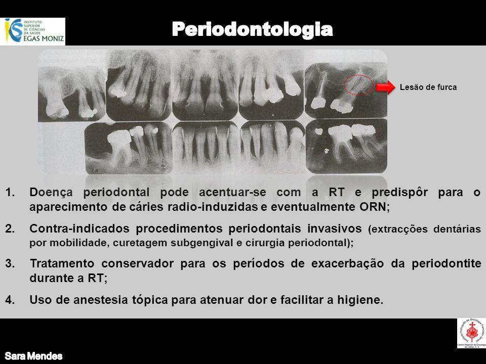 1.Doença periodontal pode acentuar-se com a RT e predispôr para o aparecimento de cáries radio-induzidas e eventualmente ORN; 2.Contra-indicados proce