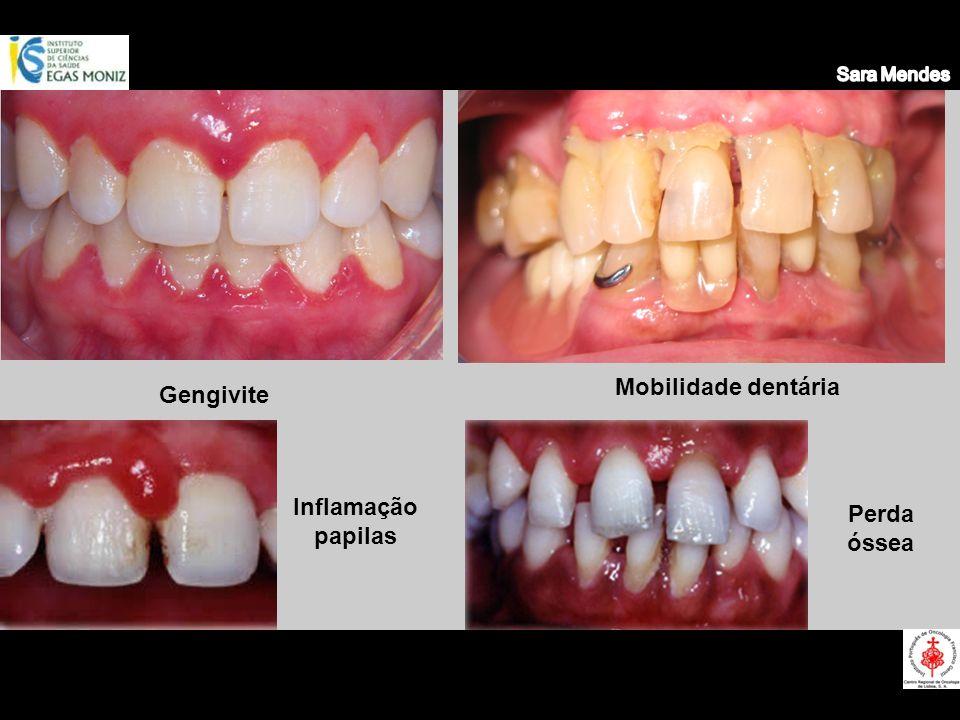 Gengivite Mobilidade dentária Inflamação papilas Perda óssea