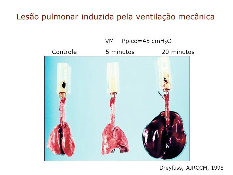 Lesão pulmonar induzida pela ventilação mecânica Controle 5 minutos 20 minutos VM – Ppico=45 cmH 2 O Dreyfuss, AJRCCM, 1998