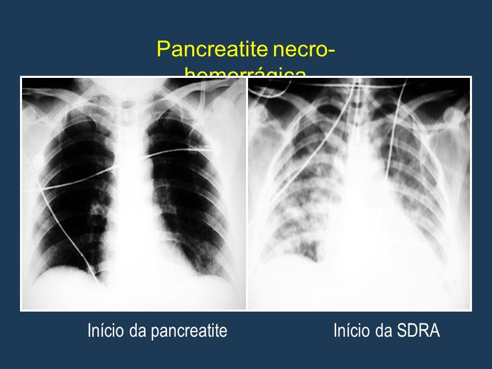 Pancreatite necro- hemorrágica Início da pancreatite Início da SDRA