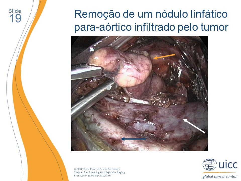 UICC HPV and Cervical Cancer Curriculum Chapter 2.e. Screening and diagnosis - Staging Prof. Achim Schneider, MD, MPH Slide 19 Remoção de um nódulo li