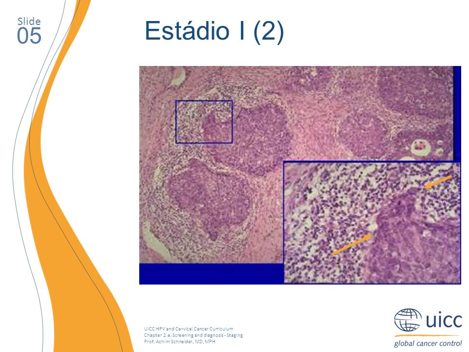 UICC HPV and Cervical Cancer Curriculum Chapter 2.e. Screening and diagnosis - Staging Prof. Achim Schneider, MD, MPH Slide 05 Estádio I (2)