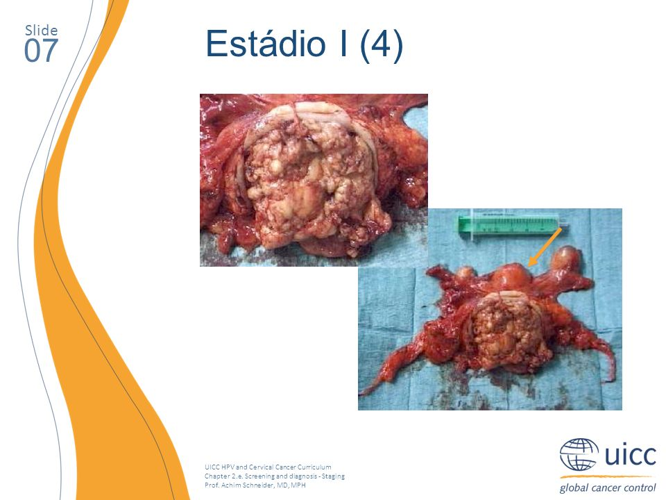 UICC HPV and Cervical Cancer Curriculum Chapter 2.e. Screening and diagnosis - Staging Prof. Achim Schneider, MD, MPH Slide 07 Estádio I (4)