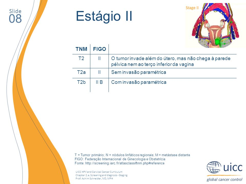 UICC HPV and Cervical Cancer Curriculum Chapter 2.e. Screening and diagnosis - Staging Prof. Achim Schneider, MD, MPH Slide 08 Estágio II TNMFIGO T2II