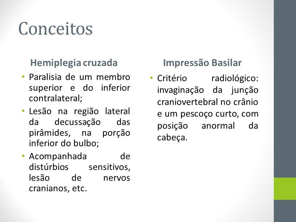 Conceitos Hemiplegia cruzada Paralisia de um membro superior e do inferior contralateral; Lesão na região lateral da decussação das pirâmides, na porç