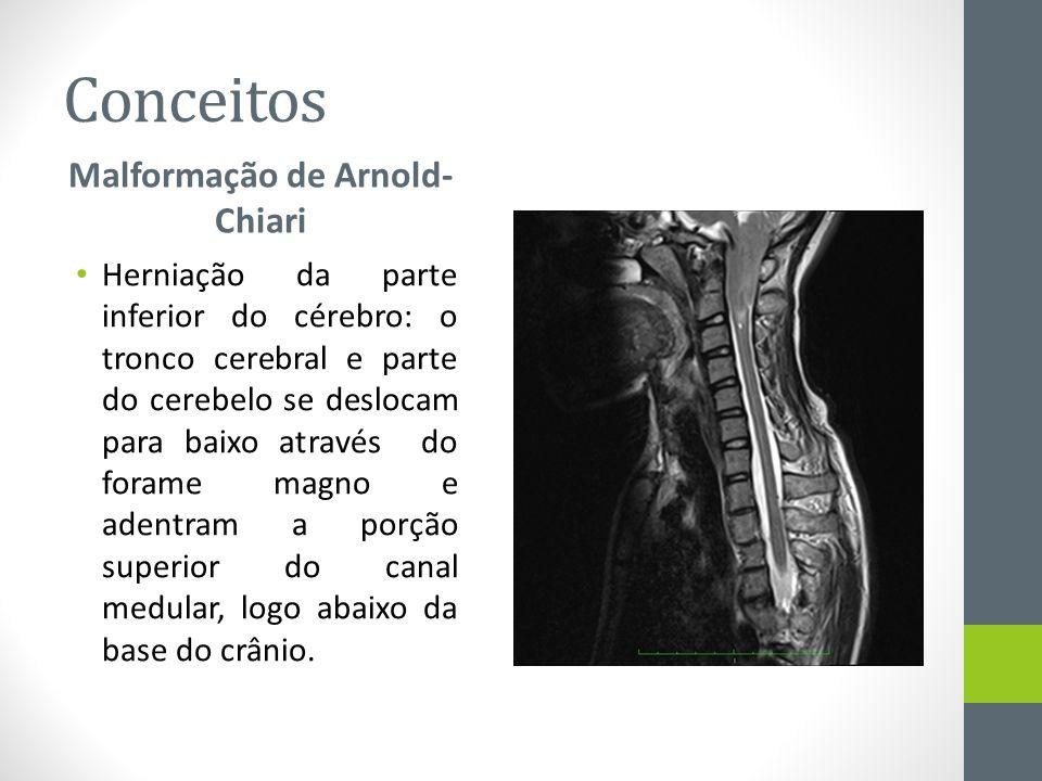Conceitos Malformação de Arnold- Chiari Herniação da parte inferior do cérebro: o tronco cerebral e parte do cerebelo se deslocam para baixo através d