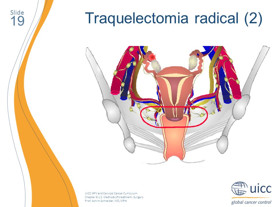 UICC HPV and Cervical Cancer Curriculum Chapter 6.c.2. Methods of treatment - Surgery Prof. Achim Schneider, MD, MPH Slide 19 Traquelectomia radical (