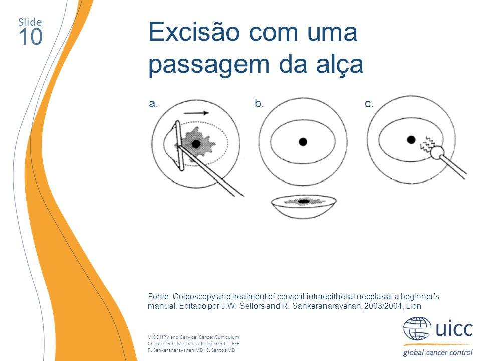 UICC HPV and Cervical Cancer Curriculum Chapter 6.b. Methods of treatment - LEEP R. Sankaranarayanan MD; C. Santos MD Slide 10 Excisão com uma passage