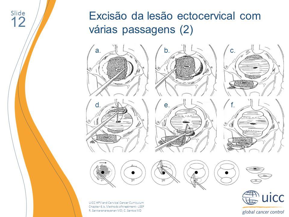 UICC HPV and Cervical Cancer Curriculum Chapter 6.b. Methods of treatment - LEEP R. Sankaranarayanan MD; C. Santos MD Slide 12 Excisão da lesão ectoce