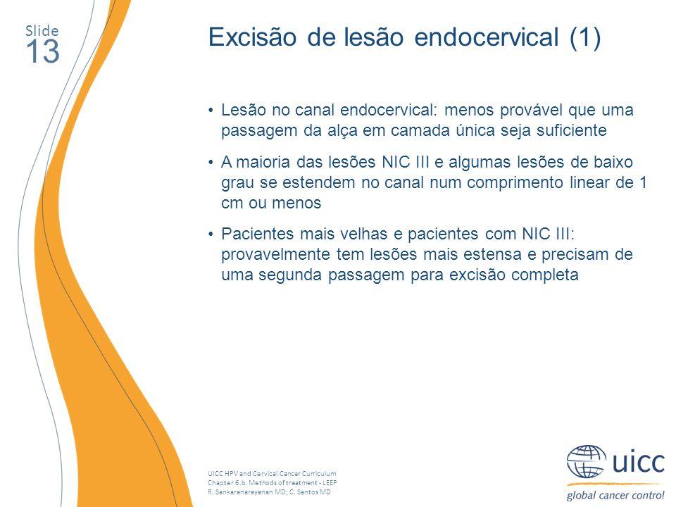 UICC HPV and Cervical Cancer Curriculum Chapter 6.b. Methods of treatment - LEEP R. Sankaranarayanan MD; C. Santos MD Slide 13 Excisão de lesão endoce