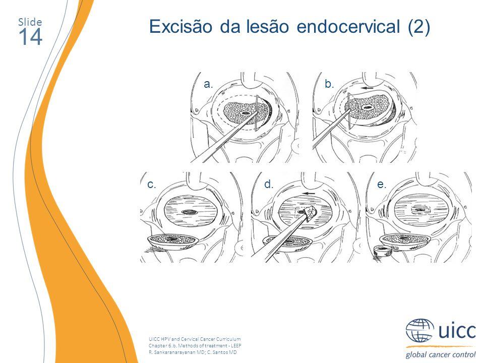 UICC HPV and Cervical Cancer Curriculum Chapter 6.b. Methods of treatment - LEEP R. Sankaranarayanan MD; C. Santos MD Slide 14 Excisão da lesão endoce