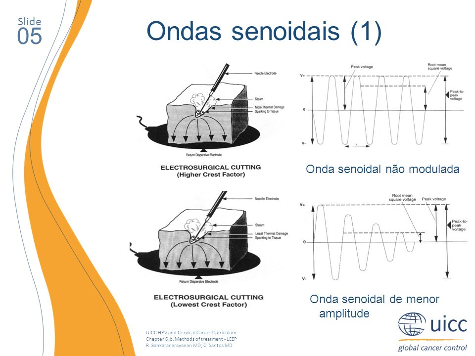 UICC HPV and Cervical Cancer Curriculum Chapter 6.b. Methods of treatment - LEEP R. Sankaranarayanan MD; C. Santos MD Slide 05 Ondas senoidais (1) Ond