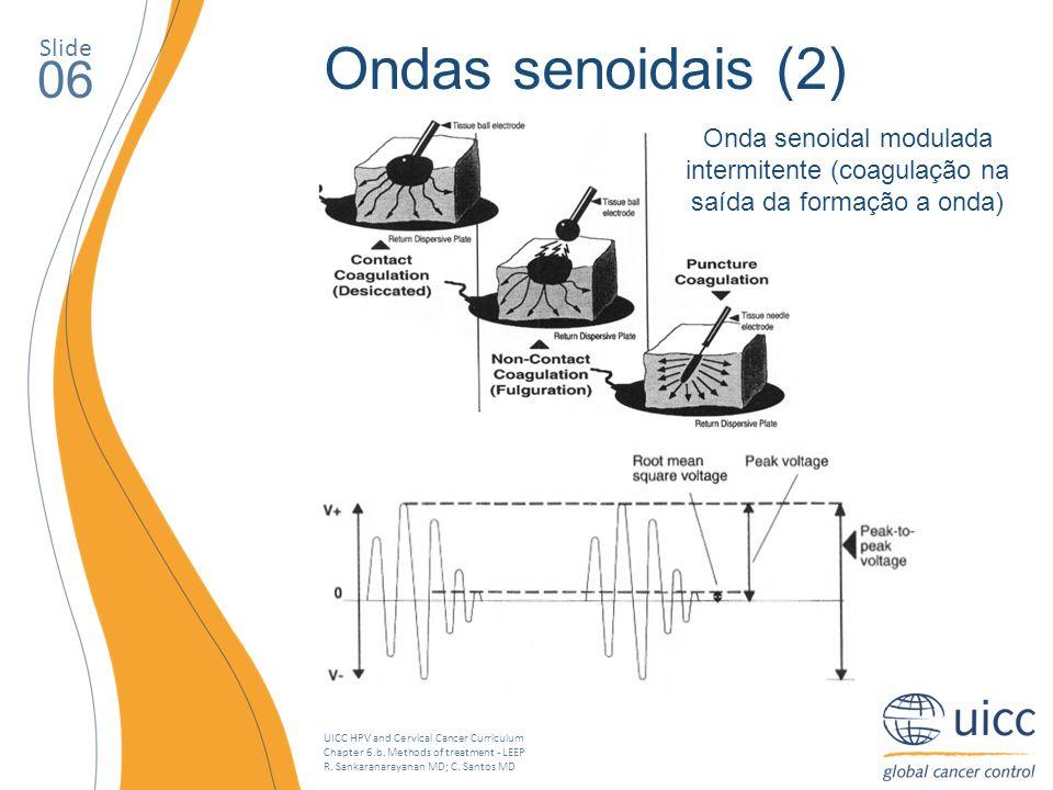 UICC HPV and Cervical Cancer Curriculum Chapter 6.b. Methods of treatment - LEEP R. Sankaranarayanan MD; C. Santos MD Slide 06 Ondas senoidais (2) Ond