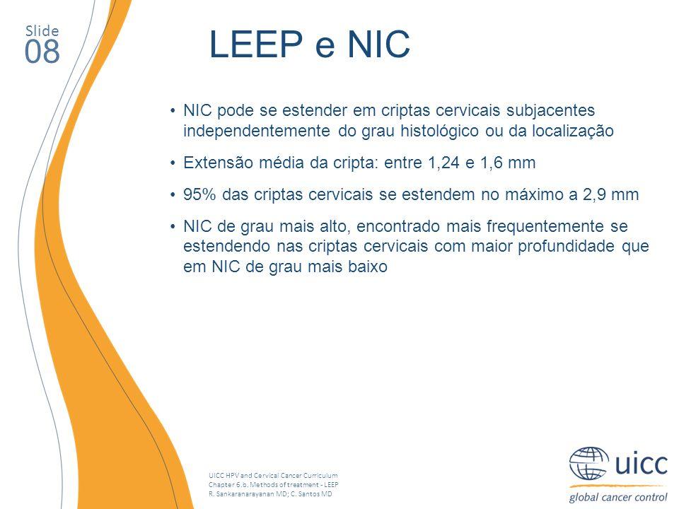 UICC HPV and Cervical Cancer Curriculum Chapter 6.b. Methods of treatment - LEEP R. Sankaranarayanan MD; C. Santos MD NIC pode se estender em criptas