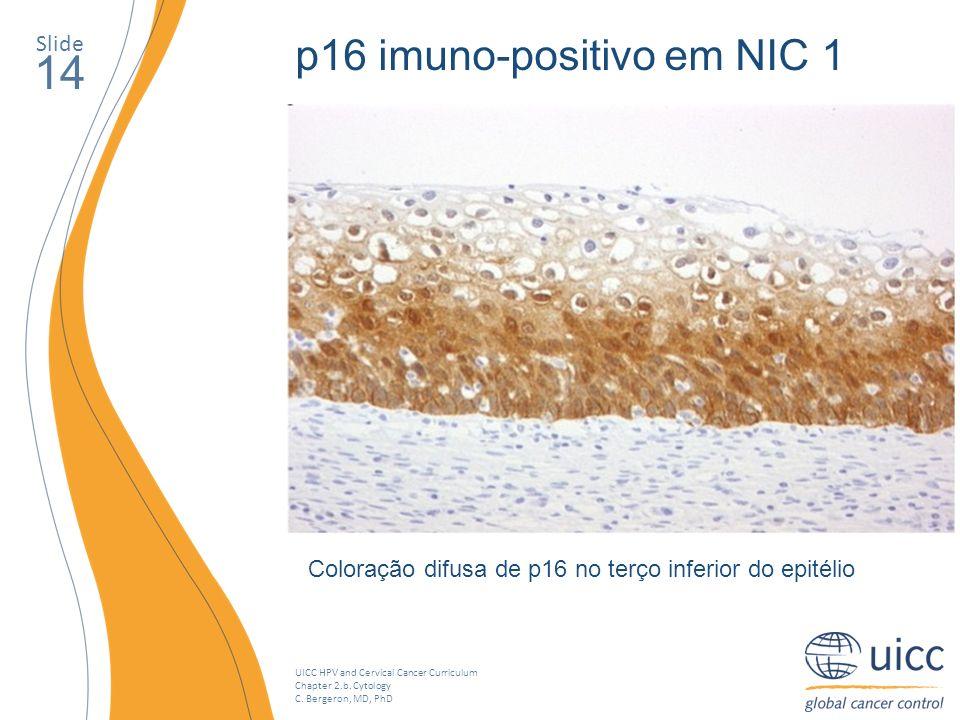 UICC HPV and Cervical Cancer Curriculum Chapter 2.b. Cytology C. Bergeron, MD, PhD Slide 14 p16 imuno-positivo em NIC 1 Coloração difusa de p16 no ter