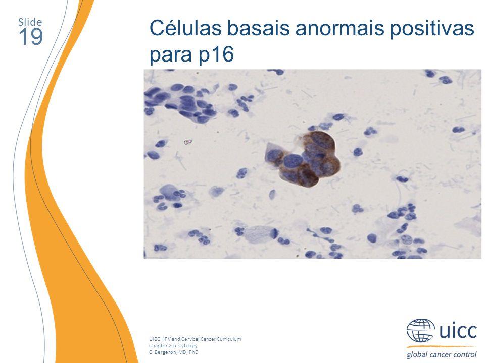 UICC HPV and Cervical Cancer Curriculum Chapter 2.b. Cytology C. Bergeron, MD, PhD Slide 19 Células basais anormais positivas para p16