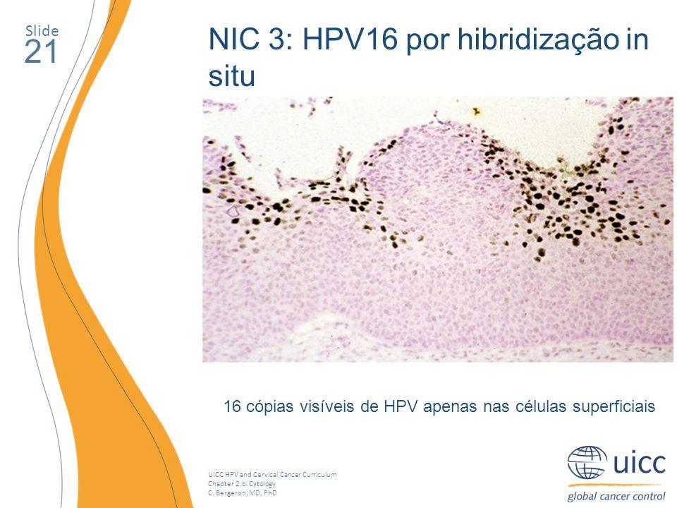 UICC HPV and Cervical Cancer Curriculum Chapter 2.b. Cytology C. Bergeron, MD, PhD Slide 21 16 cópias visíveis de HPV apenas nas células superficiais