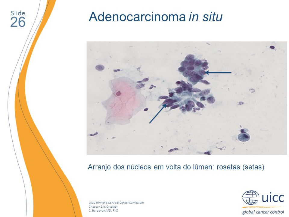 UICC HPV and Cervical Cancer Curriculum Chapter 2.b. Cytology C. Bergeron, MD, PhD Slide 26 Adenocarcinoma in situ Arranjo dos núcleos em volta do lúm