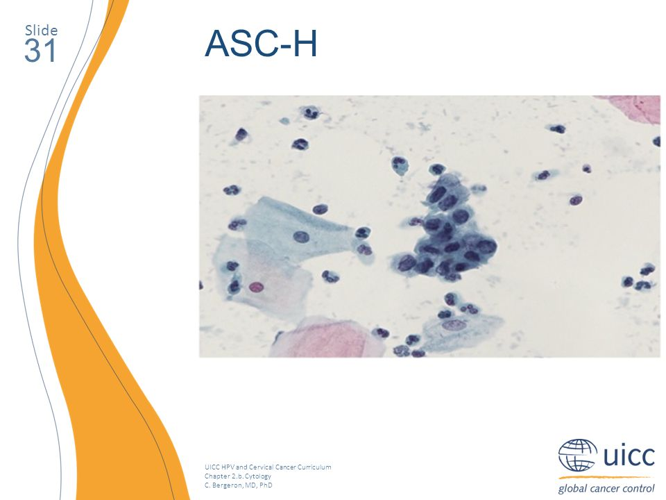 UICC HPV and Cervical Cancer Curriculum Chapter 2.b. Cytology C. Bergeron, MD, PhD Slide 31 ASC-H