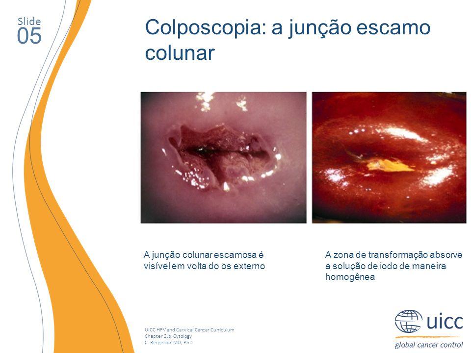 UICC HPV and Cervical Cancer Curriculum Chapter 2.b. Cytology C. Bergeron, MD, PhD Slide 05 A junção colunar escamosa é visível em volta do os externo