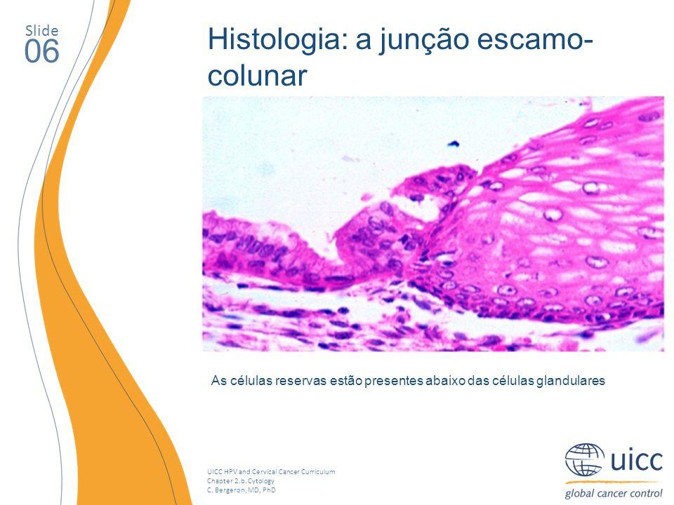 UICC HPV and Cervical Cancer Curriculum Chapter 2.b. Cytology C. Bergeron, MD, PhD Slide 06 As células reservas estão presentes abaixo das células gla