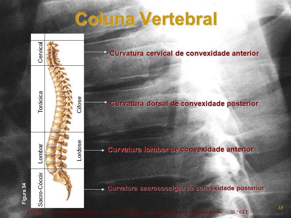ESESJD - Universidade de Évora; Anatomofisiologia Humana I - Docente: Dr. Manuel Bento 15.º CLE 18 Coluna Vertebral Curvatura cervical de convexidade