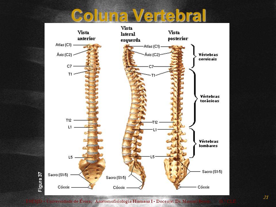 ESESJD - Universidade de Évora; Anatomofisiologia Humana I - Docente: Dr. Manuel Bento 15.º CLE 21 Coluna Vertebral Figura 37