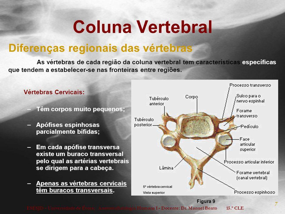 ESESJD - Universidade de Évora; Anatomofisiologia Humana I - Docente: Dr. Manuel Bento 15.º CLE 7 Coluna Vertebral Vértebras Cervicais: –Têm corpos mu