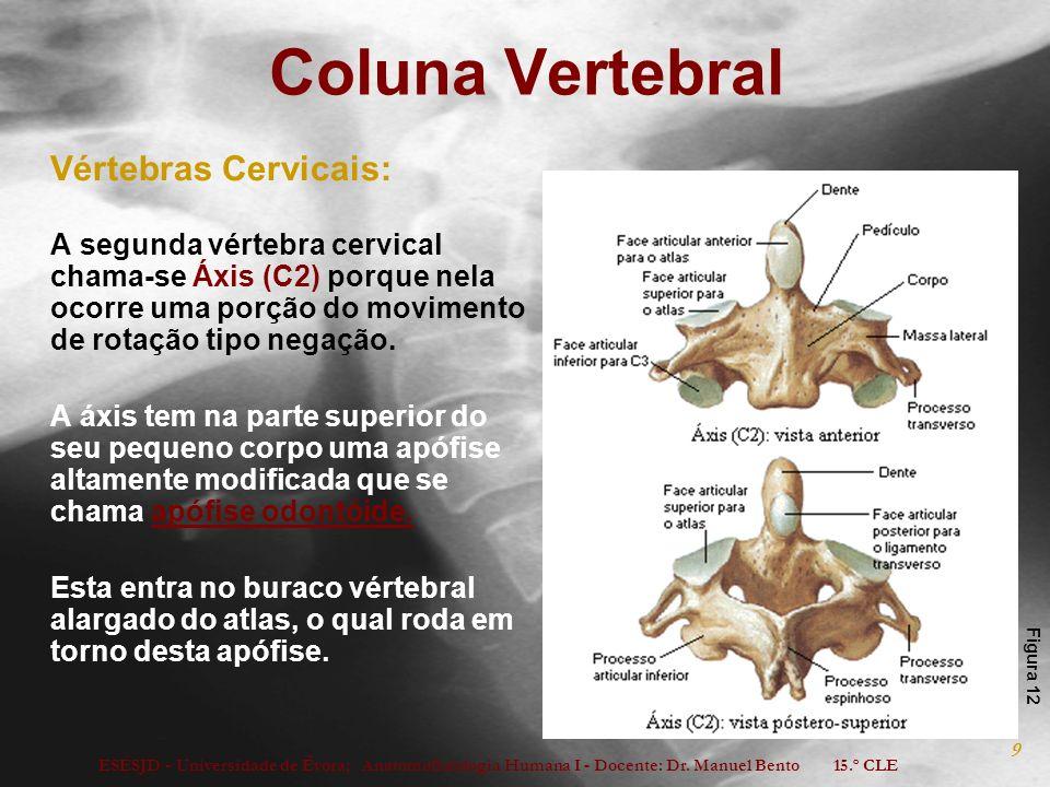 ESESJD - Universidade de Évora; Anatomofisiologia Humana I - Docente: Dr. Manuel Bento 15.º CLE 9 Coluna Vertebral Vértebras Cervicais: A segunda vért