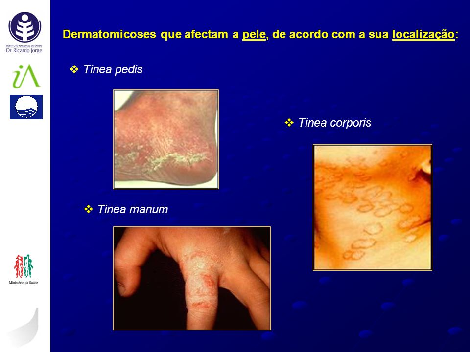 Dermatomicoses que afectam a pele, de acordo com a sua localização: Tinea pedis Tinea manum Tinea corporis