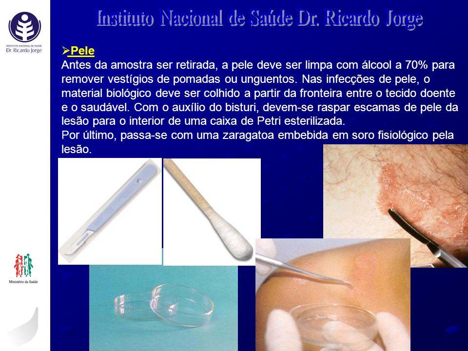 Pele Antes da amostra ser retirada, a pele deve ser limpa com álcool a 70% para remover vestígios de pomadas ou unguentos. Nas infecções de pele, o ma