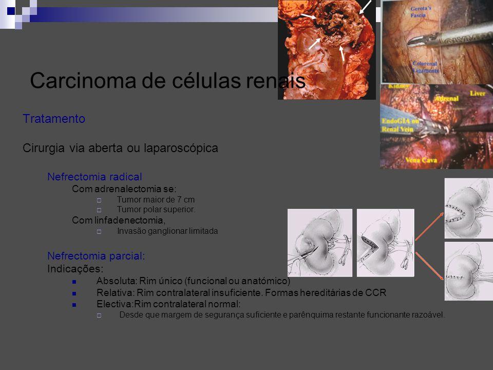 Carcinoma de células renais Tratamento Cirurgia via aberta ou laparoscópica Nefrectomia radical Com adrenalectomia se: Tumor maior de 7 cm Tumor polar