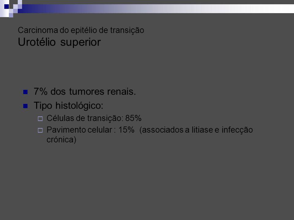 Carcinoma do epitélio de transição Urotélio superior 7% dos tumores renais. Tipo histológico: Células de transição: 85% Pavimento celular : 15% (assoc