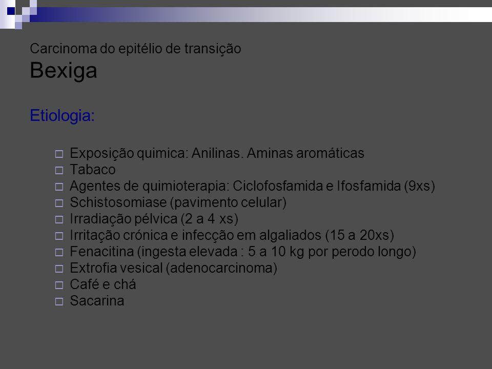 Carcinoma do epitélio de transição Bexiga Etiologia: Exposição quimica: Anilinas. Aminas aromáticas Tabaco Agentes de quimioterapia: Ciclofosfamida e